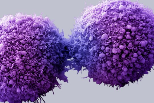 Study Reveals Why Cancer Cells Spread within the Body