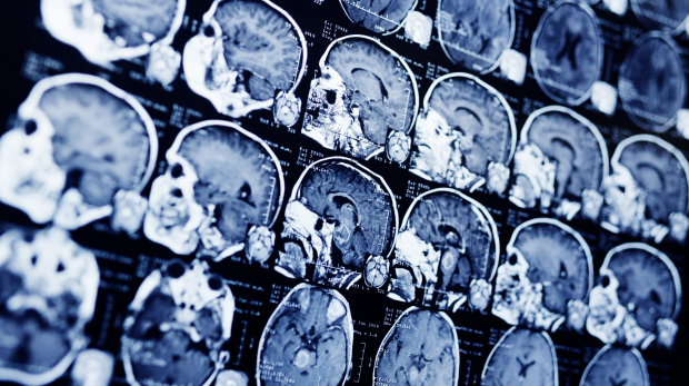 MRI scan of a patient with a tumor in the brain stem. Neurosurgery, cancer, surgery.