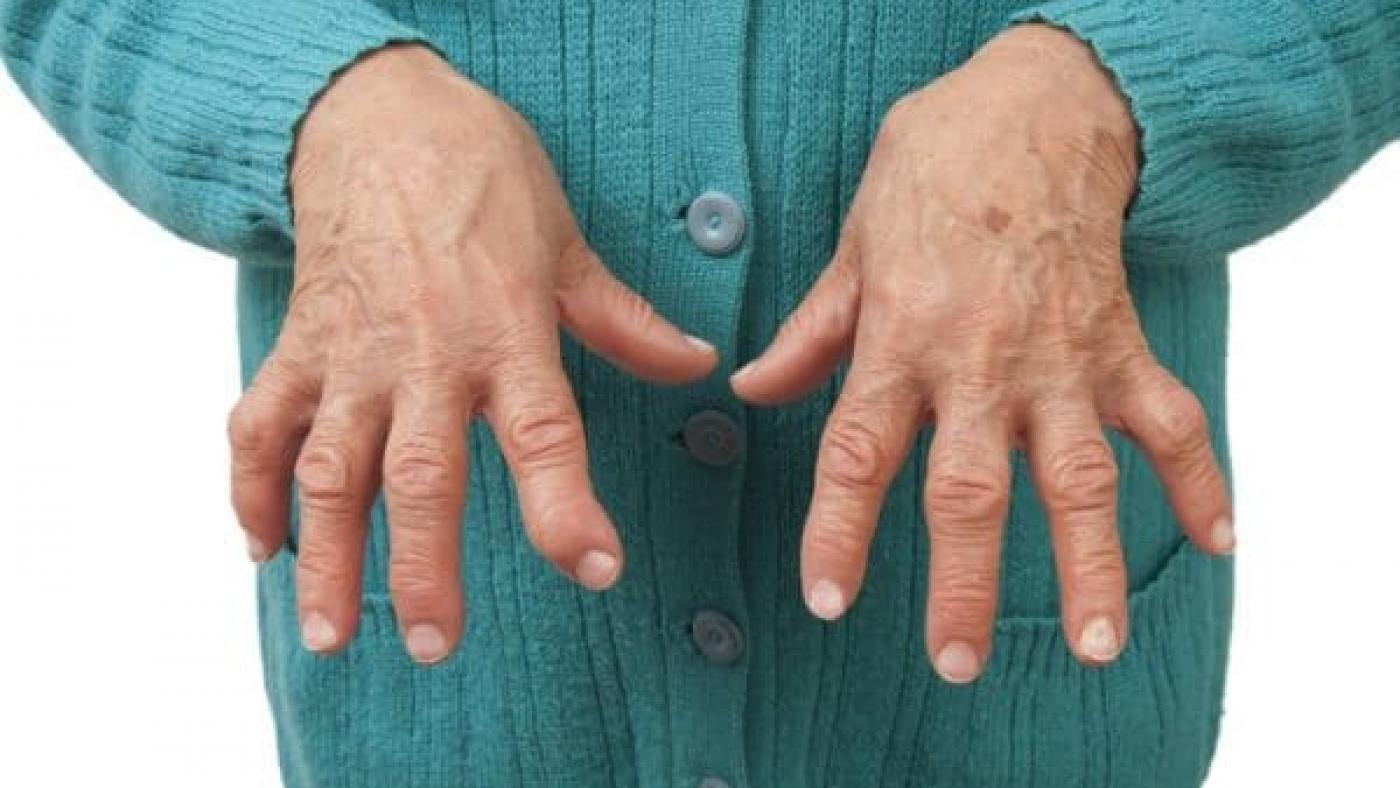 Seropositive-Rheumatoid-Arthritis