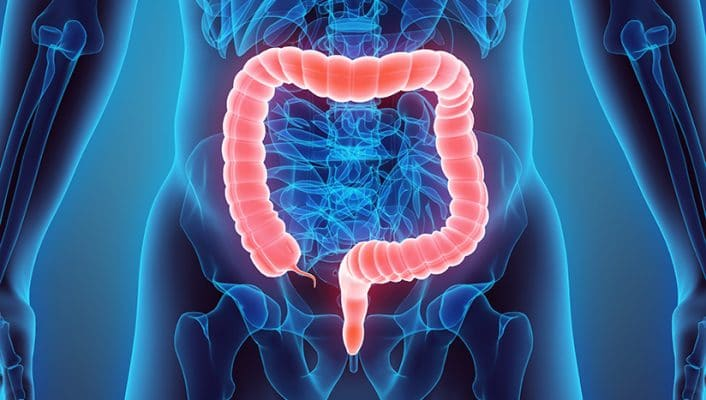 CAR-T Immunotherapy Eliminates Metastatic Colorectal Cancer in Mice