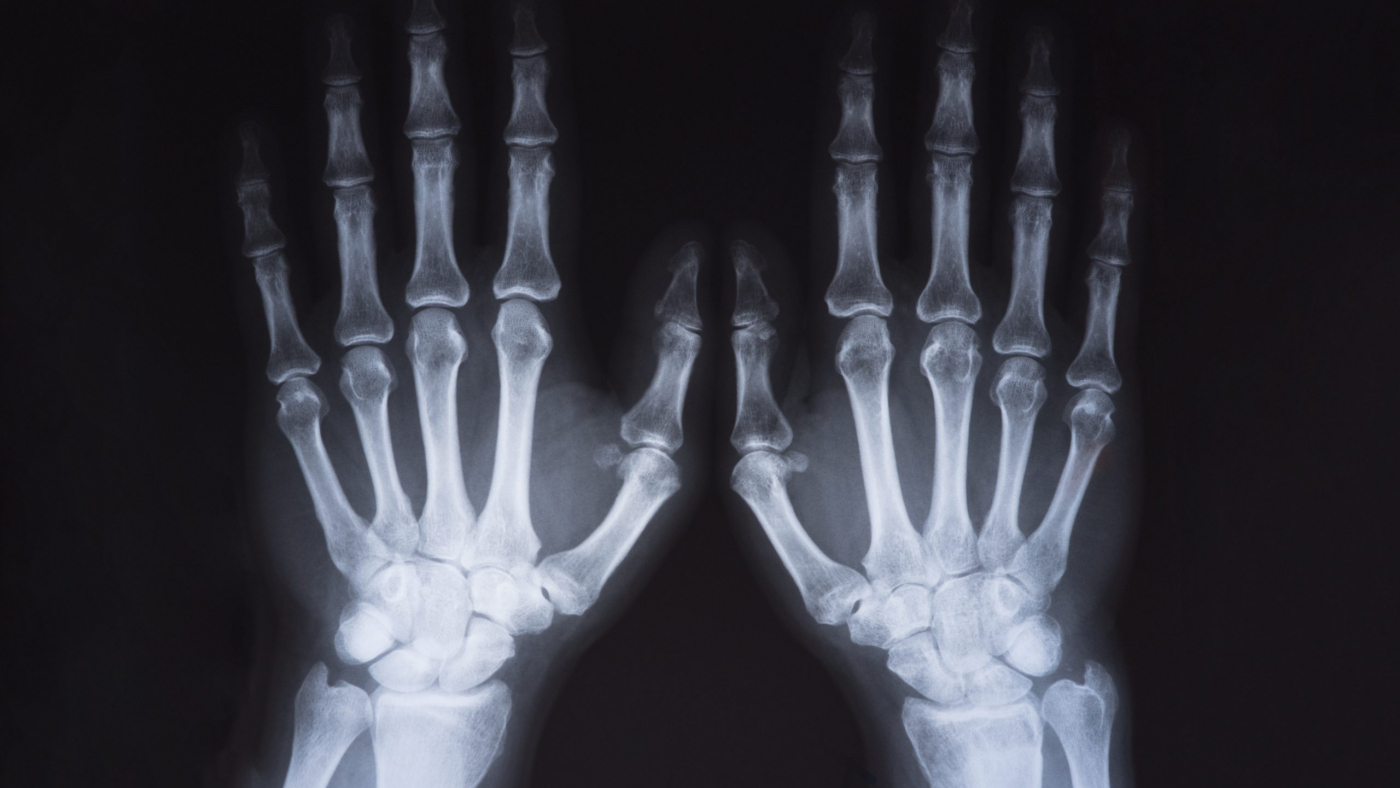 Medical x ray hands image