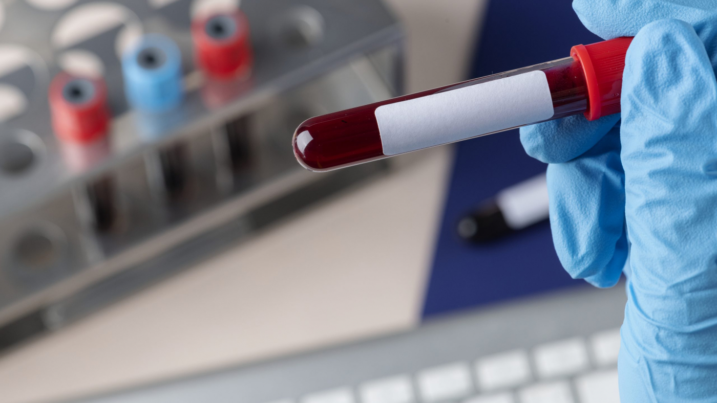 Surgeon holding a blood test