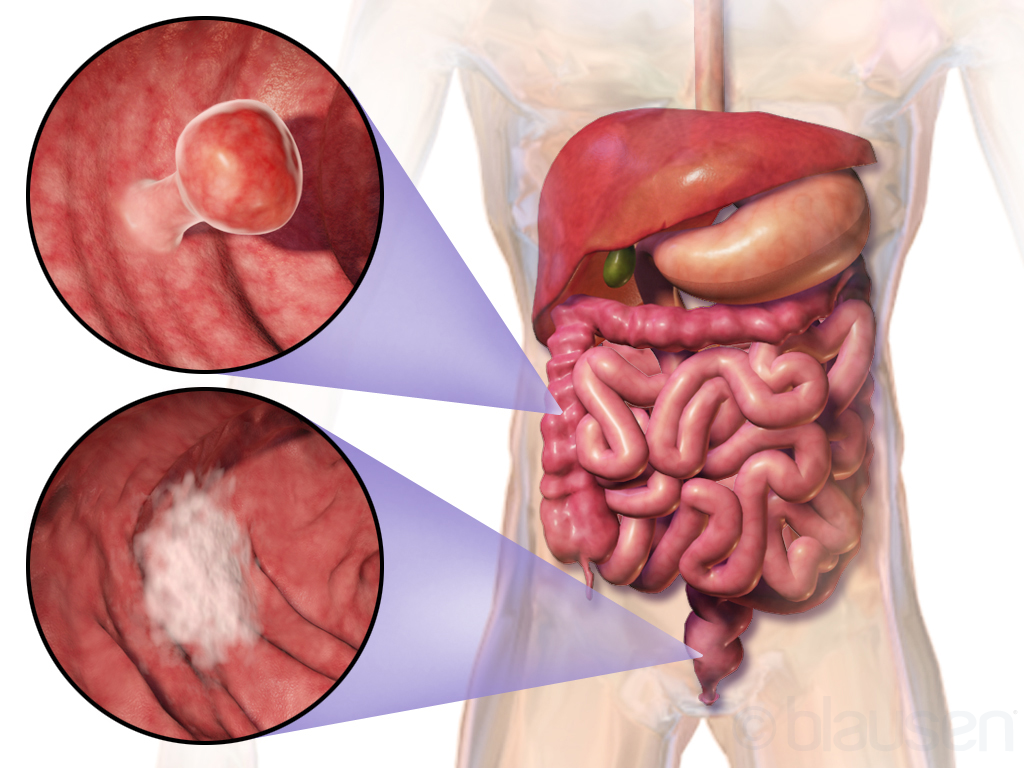 Industry Related:  Delays Lead to Late-Stage Diagnosis of Young People With Colorectal Cancer